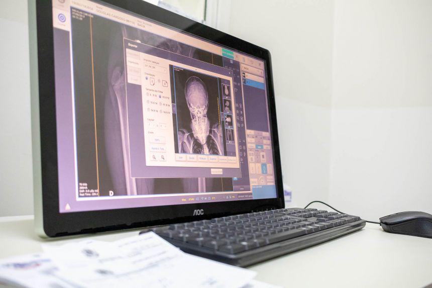 Com direito a raio-x digital, novo Pronto Atendimento é uma das estruturas entregues à população no período